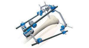 STRYKER Hoffman 2 Field Kit Orthopedic - General for sale