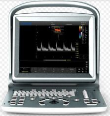 CHISON ECO5 PORTABLE OB / GYN - Vascular Ultrasound for sale