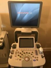 MEDISON Accuvix XG OB / GYN Ultrasound for sale