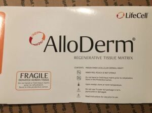 LIFECELL AlloDerm regenerative tissue matrix 4  x 7 102034 (#90) Surgical Supplies for sale