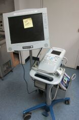 SONOSITE SonoHeart Elite Ultrasound General for sale