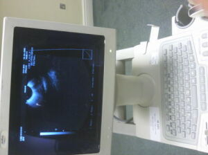 MEDISON 128 BW OB / GYN Ultrasound for sale
