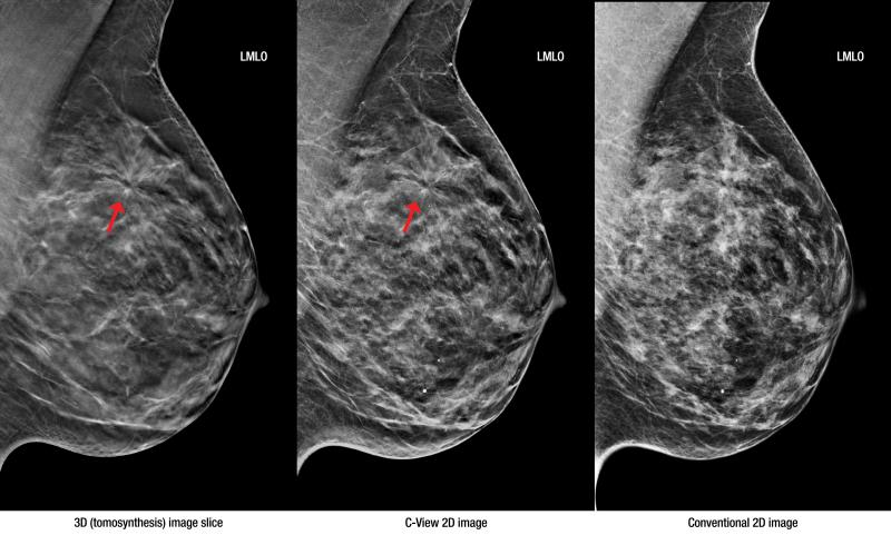 Маммография определяет рак