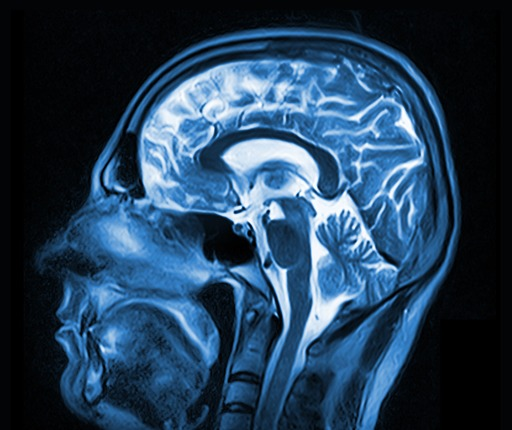 Мрт головного мозга нижний тагил цены